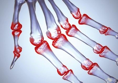 Certolizumab pegol vs adalimumab per l'artrite reumatoide